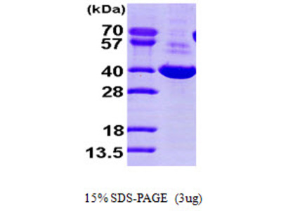 DDH / AKR1C1 Protein