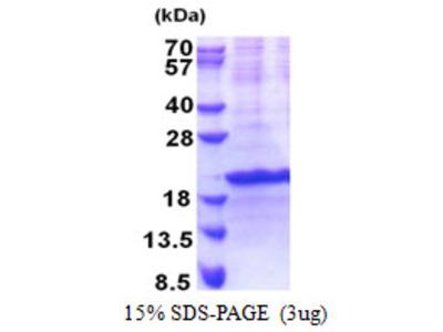 SIVA1 / SIVA Protein