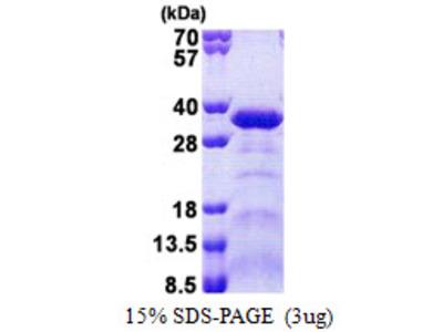 ACRP / SPAG7 Protein
