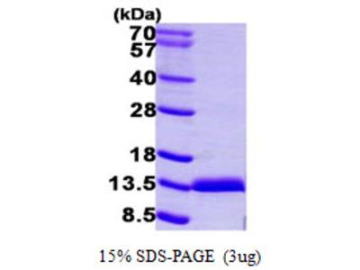 Calgizzarin / S100A11 Protein