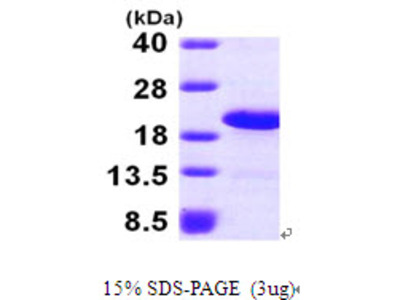 LSM1 Protein