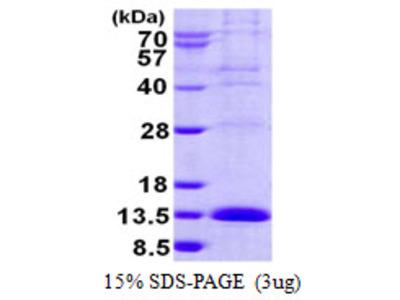 LSM2 / SnRNP Protein