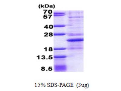 NHLH1 / HEN1 Protein