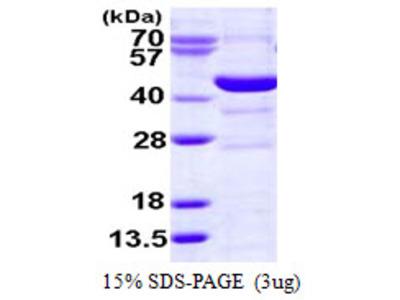 SMS / Spermine Synthase Protein