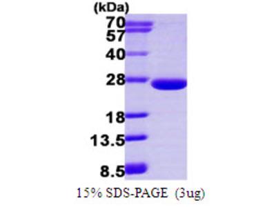 ARFL3 / ARL3 Protein