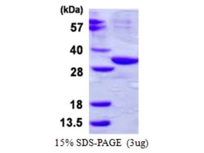 ABHD10 Protein