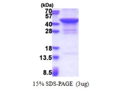 JMJD7 Protein