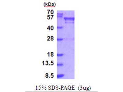 BRD3 Protein