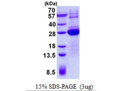 LSM12 Protein