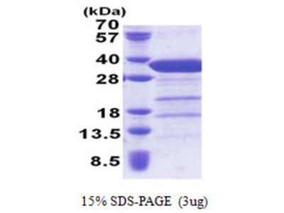 STX6 / Syntaxin 6 Protein