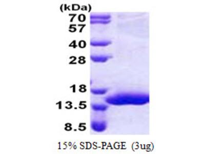 XTP4 / C17orf37 Protein