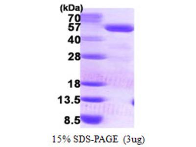 PCYT2 / ET Protein
