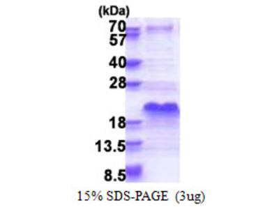 SHSF1 / SHFM1 Protein
