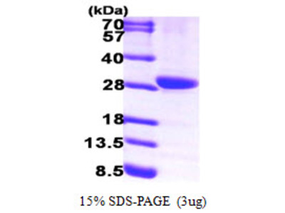 15-PGDH / HPGD Protein
