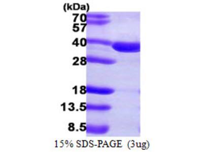 SULT2A1 / Sulfotransferase 2A1 Protein
