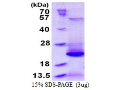 BLOC1S2 Protein