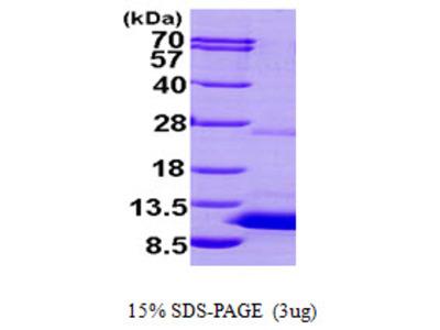 S100P Protein