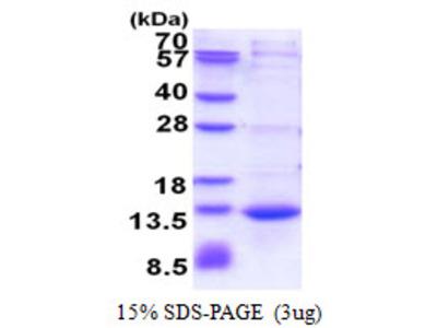 CAMK2N1 Protein