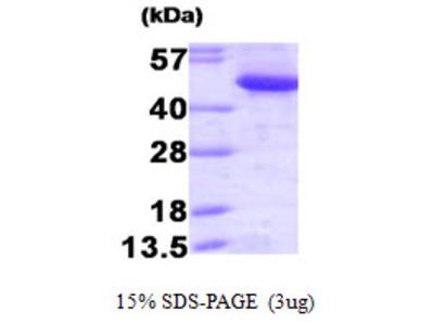 CTBP1 / CTBP Protein