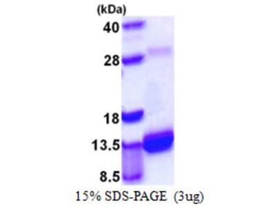 S100A4 / FSP1 Protein