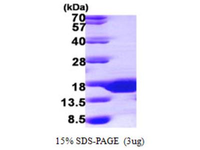 SUMO3 Protein