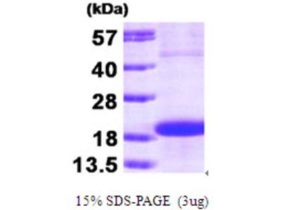 SKP1 Protein