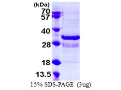 SYT1 / Synaptotagmin Protein