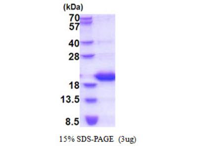 LCN1 / Lipocalin-1 Protein