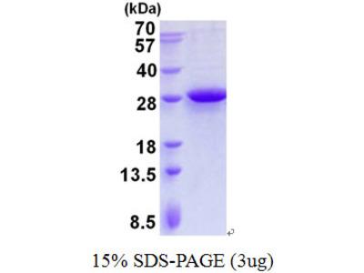 MRPL28 Protein