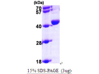 UROD Protein