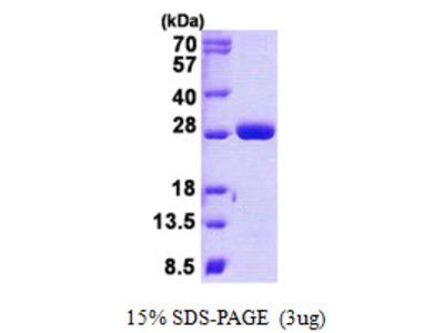 MOB1B / MOBKL1A Protein