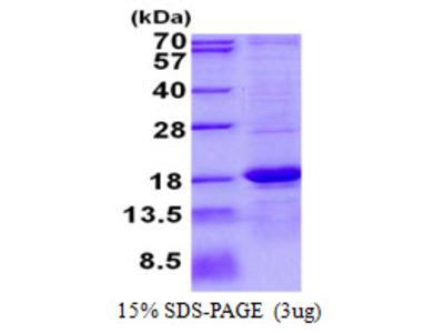 ASPRV1 / SASPase Protein