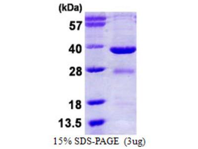 EYA2 Protein