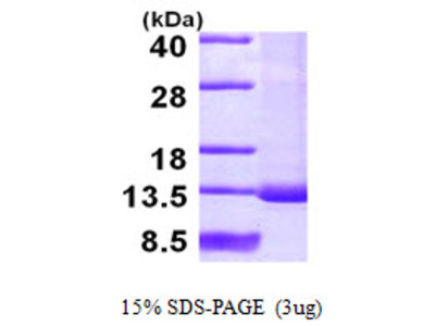 SNRPF Protein