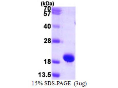 SUMO1 / SMT3 Protein