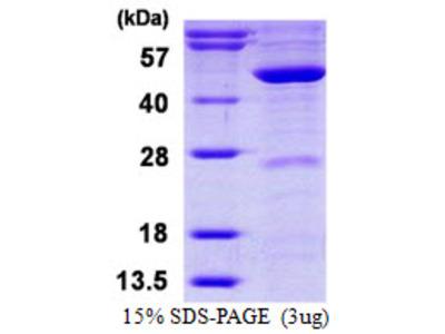 MVD Protein
