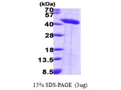 SEPT2 / Septin 2 Protein