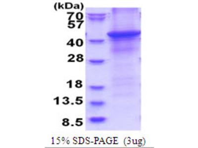 HAPLN1 Protein