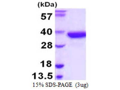 SULT1A2 / Sulfotransferase 1A2 Protein