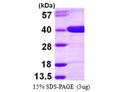 AKR1D1 Protein