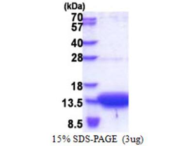 SLC51B / OSTBETA Protein