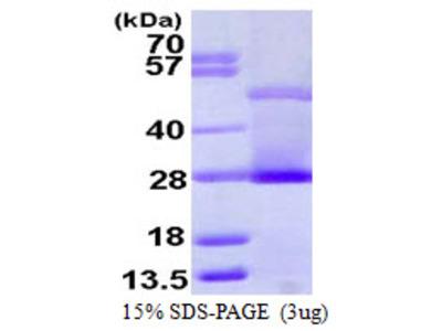 CRP / C-Reactive Protein Protein