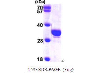 SCGN / Secretagogin Protein