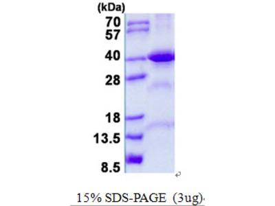 FBP2 Protein
