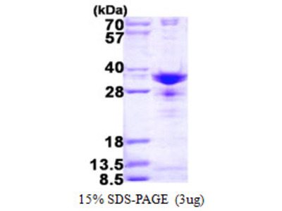 SNRPA1 Protein