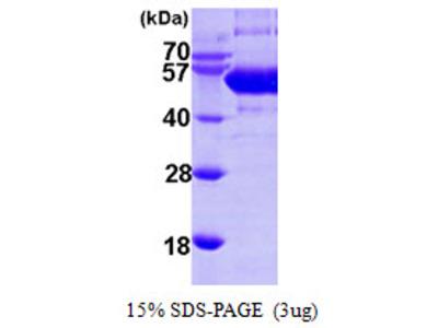 SEPSECS Protein