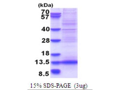 AF1Q / MLLT11 Protein