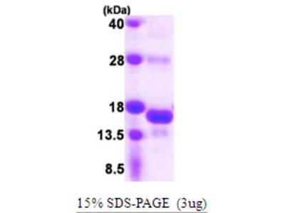 SNRNP25 Protein