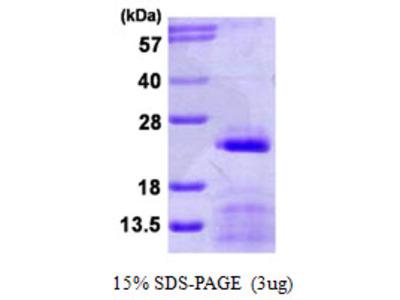 SNRPC / U1C Protein