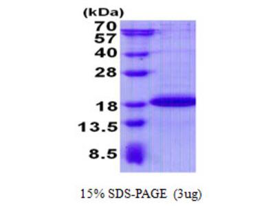 SDHAF2 Protein